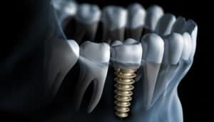 //dentalsave.com/wp-content/uploads/2017/04/2016-07-29-1469804112-9503073-dentalimplants-300x171.jpg