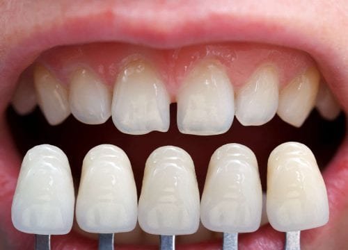 dental veneers selection